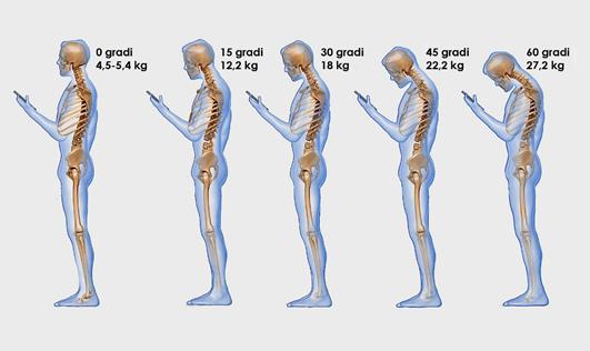 Cervicale e Smartphone