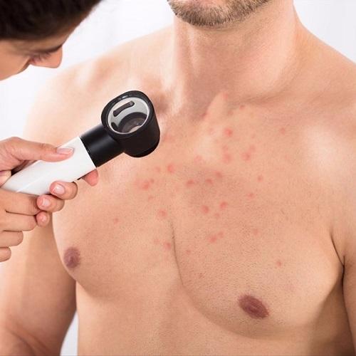 inestetismi da terapia o da malattie autoimmuni: follicolite