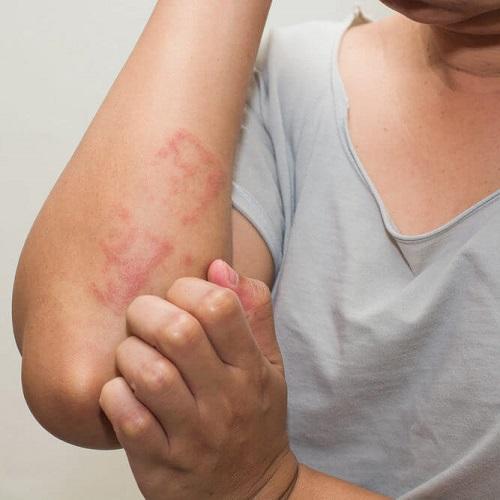 inestetismi da terapia o da malattie autoimmuni: irritazioni cutanee