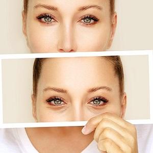 chirurgia plastica viso - BLEFAROPLASTICA