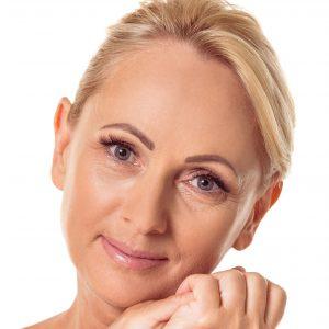 chirurgia plastica viso - lifting