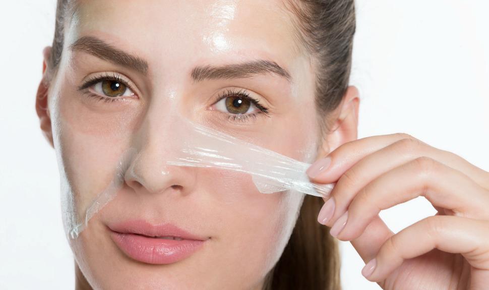 peeling chimico - medicina estetica viso