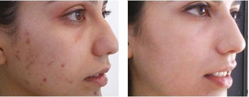 peeling chimico per macchie viso