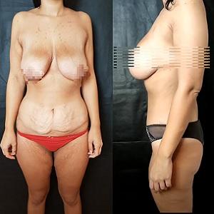 chirurgia-plastica-post-parto-mummy-makeover