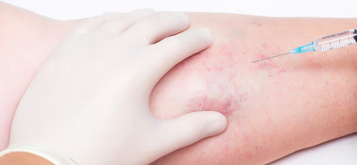 Terapia Sclerosante Come eliminare i capillari Studio Medico Aloè