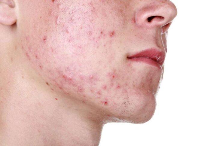 Come curare l'acne giovanile